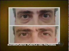 Cirurgias plásticas de pálpebras (Blefaroplastia)
