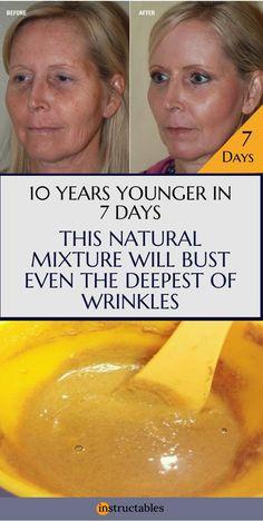Powerful Anti Wrinkle Face Mask, Yogurt, Lemon Juice and Sandalwood Recipe Skin Care anti wrinkle cream Face Wrinkles, Prevent Wrinkles, Arthritis, Prévenir Les Rides, Tips Belleza, Best Face Products, Lush Products, Beauty Products, Skin Products