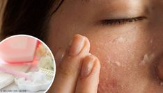 Use Baking Soda To Exfoliate Face a Prepare This Face Mask With Baking Soda And Lemon Using baking soda to exfoliate face you will get more benefits than using any other commercial product for face. Check out how to prepare the mask and how to use it. Eyelashes Grow Back, Curling Eyelashes, Artificial Eyelashes, Fake Lashes, False Eyelashes, Mink Lash Extensions, Baking Soda And Lemon, Beautiful Eyelashes