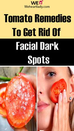 Super-Effective Tomato Remedies To Get Rid Of Facial Dark Spots At Home - Weheartlady Acne Spots, Dark Spots, Dark Skin, Diy Beauty, Lady, Facial, Goodies, Remedies, Exercises