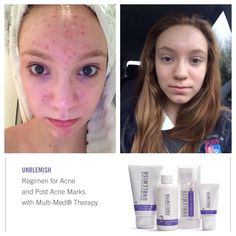 "UNBELIEVABLE!!! THIS IS ONE WEEK LATER!!!!!!  This is Kate Costa's daughter Grace. Kate joined not just for the business opportunity but because she really wanted to see first hand, what these products could do for her own family members.   ""We couldn't be happier with the results after JUST 1 WEEK! She had done everything including Rx antibiotics, high and low end cleansers, spot treatments,cosmetics, professional enzyme skin peels, you name it. 1 week on ""Unblemish"" with real results."""