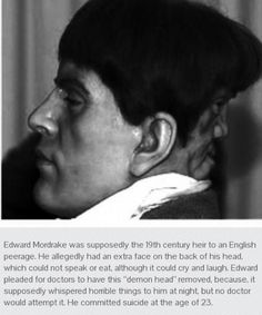 He supposedly had anextra face on the / funny pictures :: morbid-channel / funny pictures & best jokes: comics, images, video, humor, gif animation Wierd Facts, Wow Facts, Paranormal, Edward Mordrake, Creepy History, Human Oddities, Watch Your Back, Creepy Stories, Strange Stories