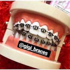 Dental Braces, Teeth Braces, Braces Transformation, Cute Braces Colors, Black Braces, Braces Tips, Getting Braces, Brace Face, Cute Black Couples