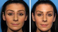 Comment Atténuer les rides avec la Chirurgie esthétique ?