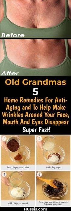 Old Grandmas 5 Home Remedies For Anti-Aging and To Help Make Wrinkles Around Your Face, Mouth And Eyes Disappear Super Fast! Old Grandmas 5 Home Remedies For Anti-Aging and To Help Make Wrinkles Around Your Face, Mouth And Eyes Disappear Super Fast!