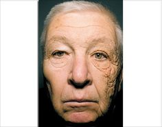 Half of truck driver's face prematurely aged due to sun damage; Man's face altered by unilateral dermatoheliosis - NY Daily News