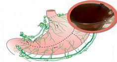 Restabileste mucusul stomacal si scapa de dureri consumand doar o cana din acest preparat!