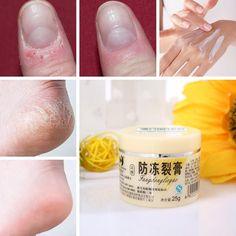 Snake Oil Antifreeze Anti-crack Antipruritic Hand Foot Cream Moisturizing Elbows Heel Skin Care