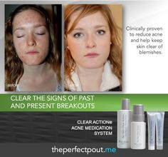 Help clear the signs of past and present breakouts and to ensure the future health of your complexion with Clear Action.