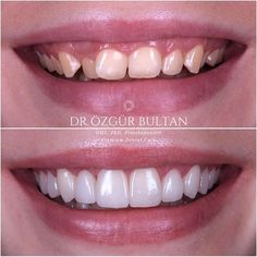 🇬🇧Intraoral photos of my previous post… Dull zirconia veneers were replaced with IPS e. Smile Dental, Dental Teeth, Dental Implants, Dental Care, Smile Teeth, Veneers Teeth, Dental Veneers, Dental Reconstruction, Dental Videos