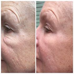 Goodbye under-eye bags, crow's feet, puffiness, etc!  In just 2 minutes after applying Instantly Ageless, my mom looked 10 years younger!  No doctor appointments, no needles, no crazy price tag.  Incredible! #botoxinabix #generationyoung http://jessicakimbrell.jeunesseglobal.com
