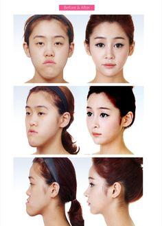 Surgery Level: Korean
