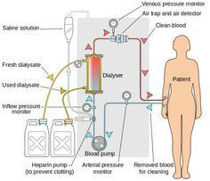 Dialyser