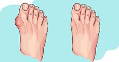 5 ways to rid your joints of uric acid crystals and eliminate gout - Just Natura. Awesome Great 5 ways to rid your jo. Bunion Remedies, Gout Remedies, Health Remedies, Gout Prevention, Purine Diet, How To Cure Gout, Uric Acid, Gota, Health Tips