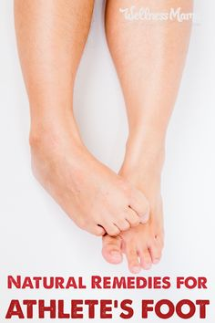 5 Effective Natural Ways to Cure Athlete's Foot for Good