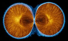 Actin (blue) and microtubules (orange) at the end of cytokinesis in a green urchin zygote.