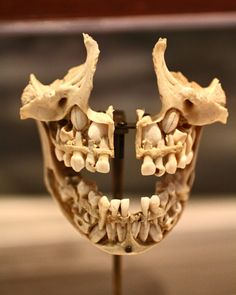 "Dentition Cutaway of a 5-7 year old mandible and maxilla, displaying teeth that have yet to erupt (Aka ""baby teeth"")."
