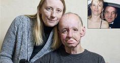 Hombre recupera su rostro gracias a impresoras3D