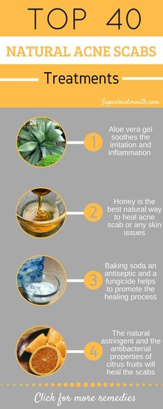 Home remedies to get rid of Acne scabs/Pimple scabs/ Acne Scars - Acne Treatment Natural Acne Treatment, Natural Acne Remedies, Home Remedies For Acne, Cold Remedies, Sleep Remedies, Pimples Remedies, Herbal Remedies, Homemade Acne Remedies, Psoriasis Remedies
