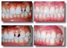 Porcelain Veneers Before and after. #BeforeandAfter #Dentist #Dental #ManassasVA