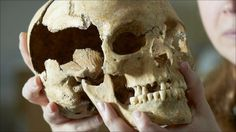 Stirling Castle skeletons date from independence wars