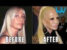 Worst celebrity plastic surgery disasters - YouTube
