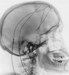Bei der Tiefen Hirnstimulation werden feine Elektroden in die zu behandelnden Hirnareale implantiert.