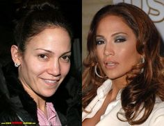 J-Lo...The reason celebrities get nose jobs is to make their male noses feminized. The nostrils of the male nose is slight and bulbous, while on the real female nose, the nostrils are visible.