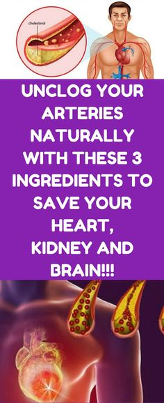 Watch This Video Captivating Clear Blocked Arteries with Natural Health Remedies Ideas. Splendid Clear Blocked Arteries with Natural Health Remedies Ideas. Health Tips For Women, Health Advice, Health And Beauty, Health And Wellness, Health Care, Health Fitness, Fitness Tips, Health Diet, Beauty Skin