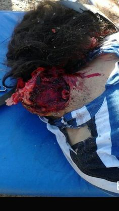 Body of headless woman on streacher.