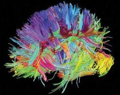 Head Shot: In this diffusion spectrum image, fiber bundles are color coded according to their directions of impulse transmission. The Human Connectome Project uses diffusion spectrum and other cutting-edge neuroimaging techniques to map fiber pathways in the normal human brain. (For more images, see http://www.humanconnectomeproject.org/gallery/