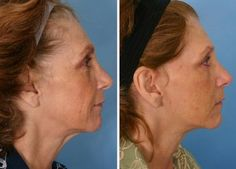 Getting Rid Of Age Indications Using Facial Massage Yoga Routines: Get Your Organic Facelift Now!