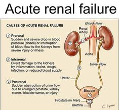 prerenal renal (intrinsic)-structural damage post renal