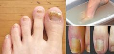 Let us begin with explaining what fungal nail is. First of all fungal infections can affect any part of the body including nails. Fungal nail infections are common infections of the fingernails or toenails that Toenail Fungus Treatment, Nail Treatment, Toenail Fungus Remedies, Fungus Toenails, Toe Fungus, Varicose Vein Remedy, Flat Tummy, Legs