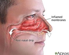 """""""Clear a stuffed nose or relieve sinus pressure by pushing your tongue against the roof of your mouth then pressing a finger between your eyebrows"""" says Lisa DeStefano, D.O., an assistant professor at the Michigan State University college of osteopathic medicine. This causes the vomer bone to rock, which loosens your congestion and clears you up. After 20 seconds, you'll feel your sinuses start to drain."""