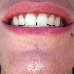 Got white teeth? #4044442866  we have openings #teethwhitening #affordable #smile #whitening #whiteteeth #teeth #prettyteeth ##pearlywhites #atlanta #buford #lawrenceville #collinshill #duluth #lilburn #gwinnettsalons #atlantahairstylists #atlantabarbers #atlantamua #mua #thewhiteningbaratl #atlantateethwhitening #collegestudents #highschoolstudents #makeover #selfesteembooster  #afterpic by thewhiteningbaratl Our Teeth Whitening Page…