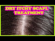 How To Treat Dry Itchy Scapl And Dandruff Naturally www.newnaturalremedies.com/DryItchyScapl