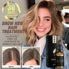 Hair Growth Essential Oil Anti Hair Loss Essence Repair Damage Hair Growth Treatment Thick Root Repair Dry Hair Care Products