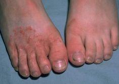 Psoriasis Treatment Video Source by sarahlewistl Foot Fungus Treatment, Home Treatment, Fungal Rash, Fungal Infection Skin, Vapor Rub On Feet, Foot Soak Vinegar, Vicks Vapor Rub, Toenail Fungus Cure