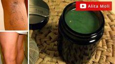 Elimina las varices desde el primer dia con este remedio natural