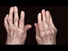 Ból Stawów Ustępuje Natychmiast Z - 1 Tanią Cebulą - YouTube Rheumatische Arthritis, Home Remedies For Arthritis, Arthritis Relief, Natural Treatments, Stem Cell Therapy, Regenerative Medicine, Alternative Therapies, Rheumatoid Arthritis, Exercises