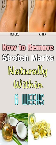how-to-remove-stretch-marks