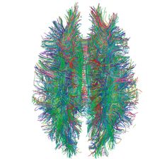"Plush toy, or Science? White matter connections in the human brain are imaged using diffusion MRI. This ""connectome"" is output from a 2008 study by Gigandet et al attempting to determine statistical confidence in mapping neural connectivity."
