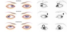 1000 Images About Nystagmus On Pinterest Visual