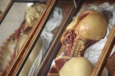 Wax Anatomical Models in Rosewood and Venetian Glass Boxes, The Josephinum, Workshop of Clemente Susini of Florence circa 1780s, Vienna, Austria by astropop, via Flickr