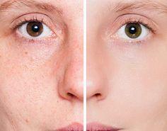 Com ingredientes que você tem em casa, dá pra fazer ótimos tratamentos para clarear a pele do rosto. - Aprenda a preparar essa maravilhosa receita de Como clarear a pele do rosto