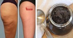 Win The Cellulite Battle With This Easy Paste I haven't met a woman who doesn't hate cellulite. It comes really unexpected. That's probably the most stubborn fat I've ever seen. It looks so ugly anywhere on your body. Cellulite doesn't r Cellulite Cream, Anti Cellulite, Coffee Cellulite Scrub, Lose Cellulite, Healthy Skin, Healthy Life, Cellulite Remedies, Coffee Scrub, Cellulite Scrub