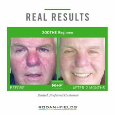 Sensitive skin. Rosacea. Eczema. It can happen to men, women, and children. Rodan+Fields Soothe is helpful for treating the side effects. Clinical results. 60 day, empty bottle, money back guarantee.