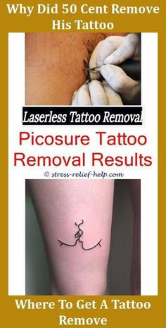 33 Best Home Tattoo Removal Images On Pinterest At Home