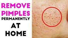 How To Remove Pimples Overnight - Acne Treatment at home with Apple Cider Vinegar - - Acne Treatment Acne Treatment At Home, Oily Skin Treatment, Natural Acne Treatment, Remove Pimples Overnight, How To Get Rid Of Pimples, Home Remedies For Pimples, Acne Remedies, Acne And Pimples